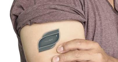 Un patch pour mesurer la glycémie en continu